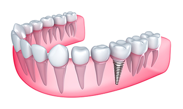 Reston Dental Implants