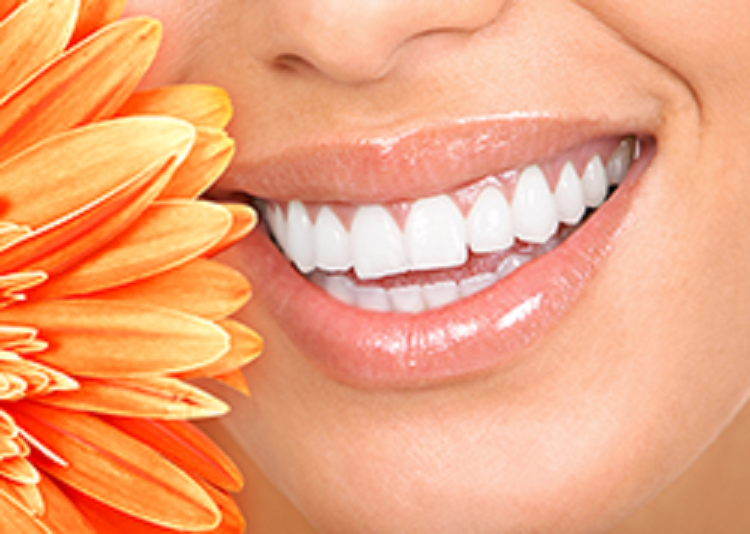 Reston Teeth Whitening
